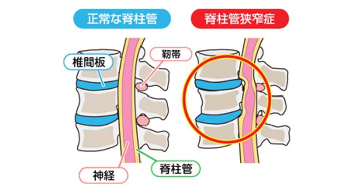 狭窄 治療 症 管 脊柱